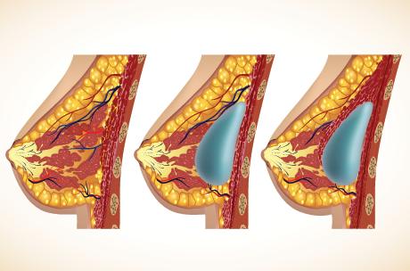 Implante-mamare-silicoane-2